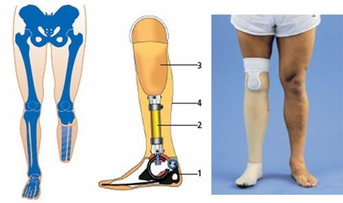 открытых цены на протезирование ног ниже колена компе