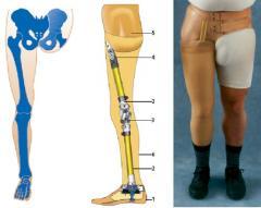 Prótesis Para Desarticulado De Cadera